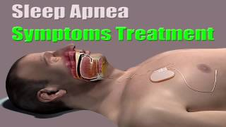 Sleep Apnea Symptoms Treatment