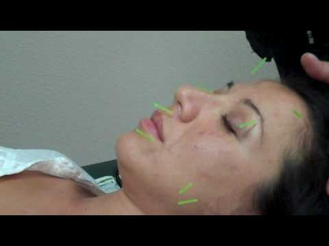Acupuncture Facial Rejuvenation - needling the facial muscles