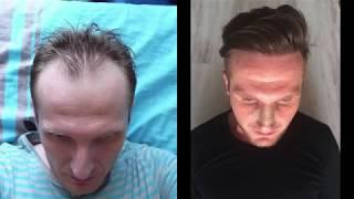 Пересадка волосся з 4360 трансплантатів ручного ФРУ | дві операції сесій на різницю у 8 років