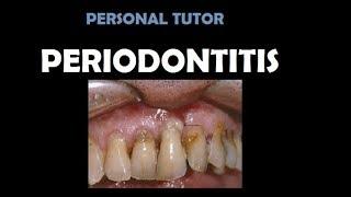 Konten dokter gigi- Penanganan abscess periodontal.