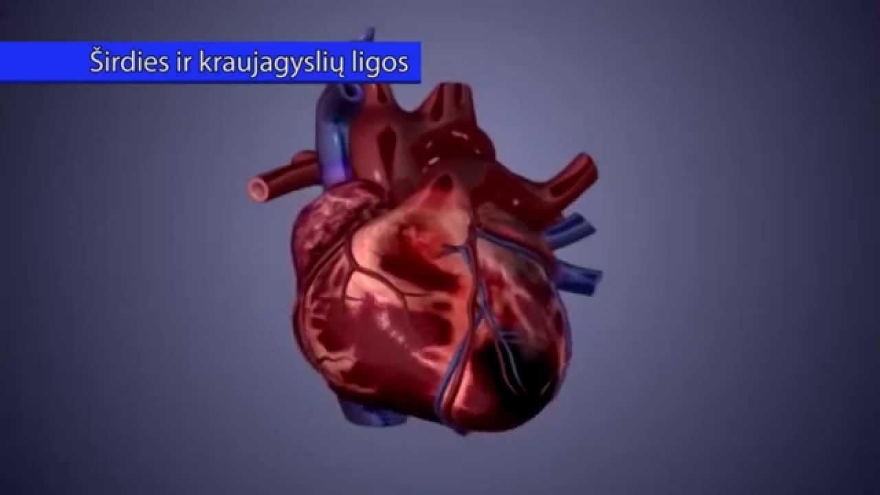 hipertenzija yra širdies ir kraujagyslių liga sąmonės netekimas esant hipertenzijai yra