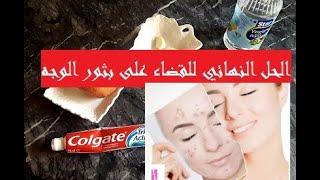 أسرع علاج لحب الشباب أو البثور على الوجه مع إزالة البقع السوداء