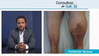 Hinchada trombosis pierna