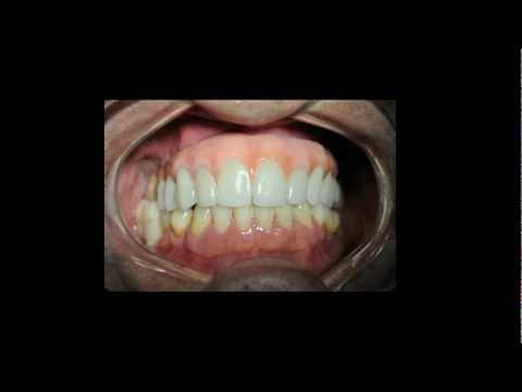 Protese dento gengival