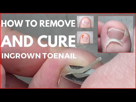 how to fix ingrown toenail cut v