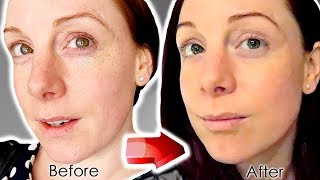 NON SURGICAL FACELIFT - CACI FACIAL, LIP & PEEL | IS IT WORTH IT?