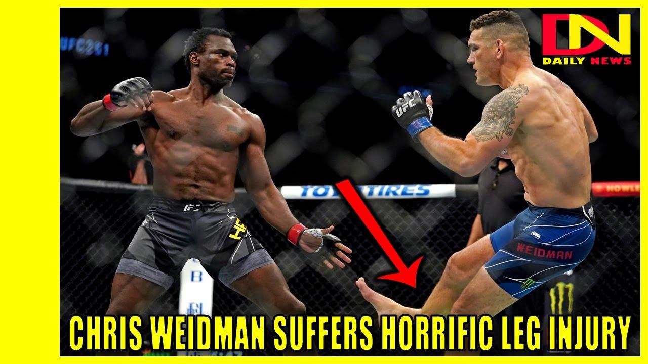 Chris Weidman to Undergo Surgery After Suffering Gruesome Leg ...