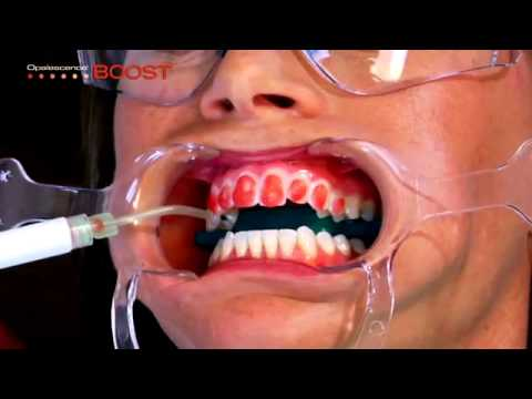 Ultradent Opalescence Boost Youtube