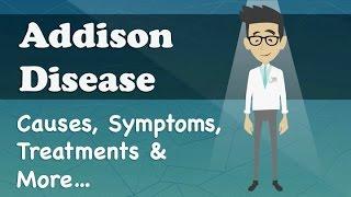 Addison Disease - Causes, Symptoms, Treatments & More…