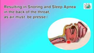 Breath Right and  how to stop snoring