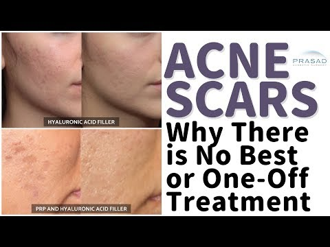 Acne Scars - Why There is No Single Best Treatment