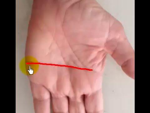 ลายมือขาด (Simian Line) ดีหรือเสียอย่างไร