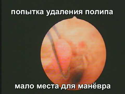 Гистероскопия матки: операция с целью удаления полипа