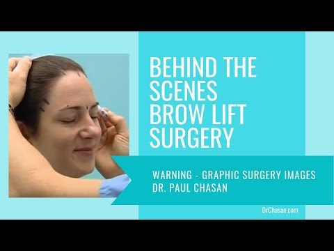Brow Lift Surgery Behind the Scenes - San Diego Plastic Surgery