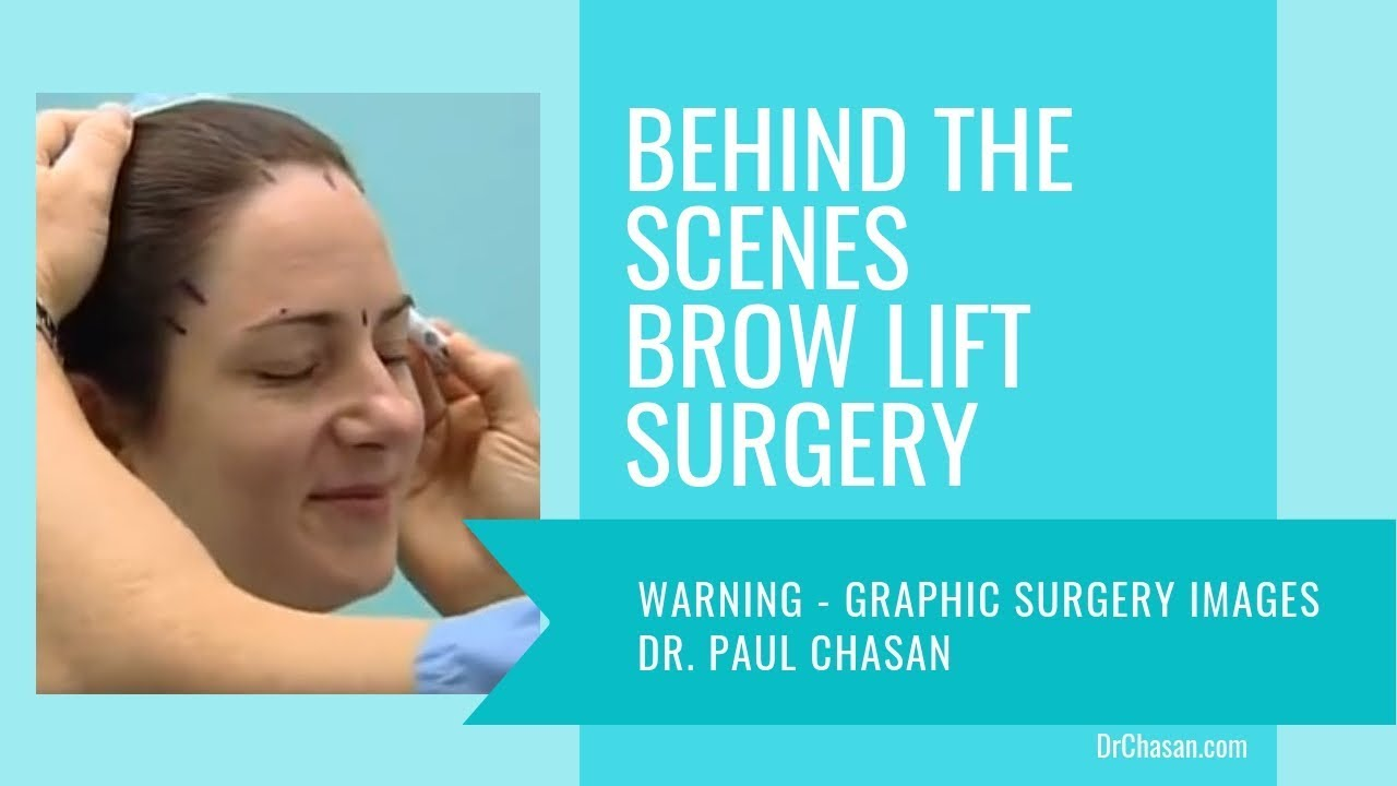 Brow Lift Surgery Behind the Scenes - San Diego Plastic ...