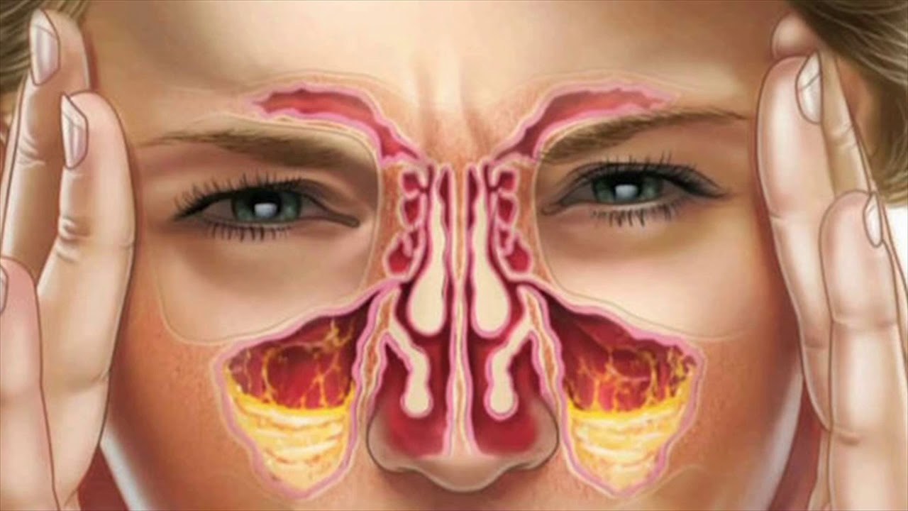 what is post nasal drip caused from
