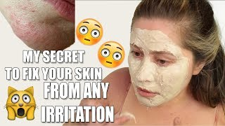 GET RID OF SKIN RASHES ON FACE | Allergic reaction