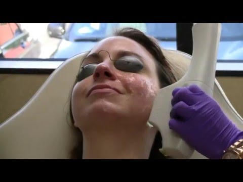 IPL Laser Photofacial Treatment | Moradi MD