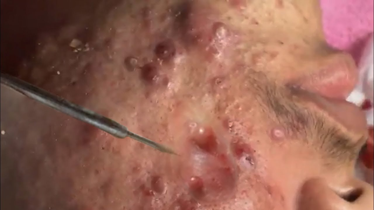 Wow Huge Cystic Acne Extraction And Blackhead Removal Process Youtube