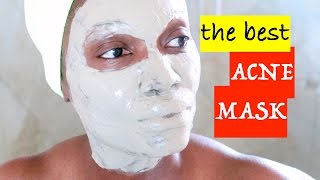 THE BEST ACNE MASK~AZTEC INDIAN HEALING CLAY MASK‼️
