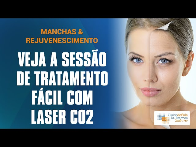 Manchas & Rejuvenescimento 2 | Laser de CO2 Fracionado DEKA
