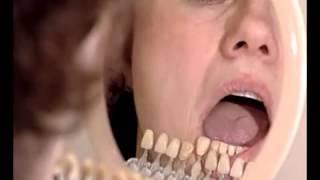 видео Что такое мостовидные протезы