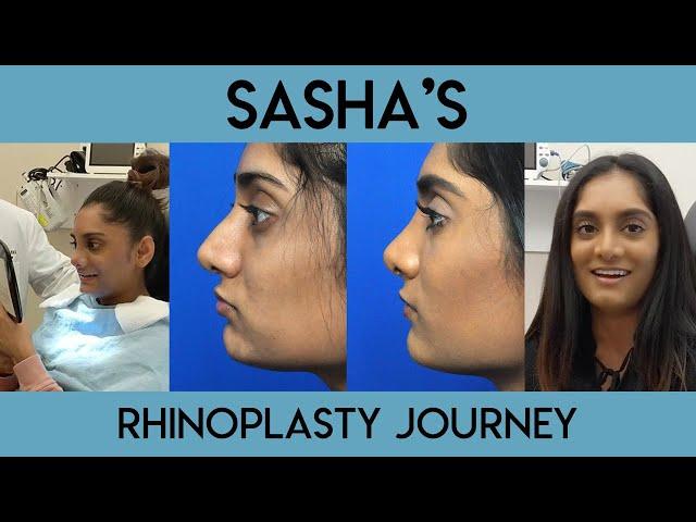 Sasha's Rhinoplasty Journey
