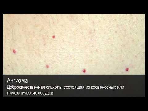 Ангиома. Толковый Видеословарь русского языка