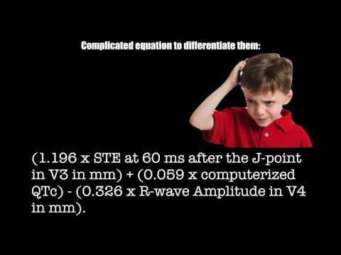 Chapter 7 - STEMI Equivalents
