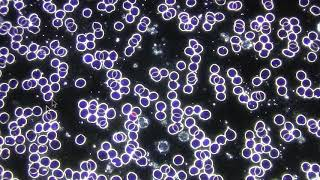 Amazing! Healy's Effect on Blood Cells After Just a 1 Hour Program!
