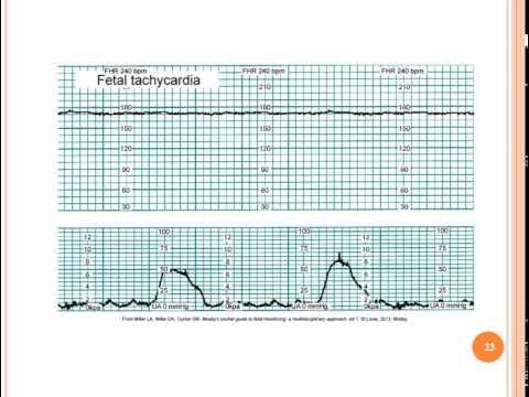 Chapter 15 Fetal Assessment During Labor