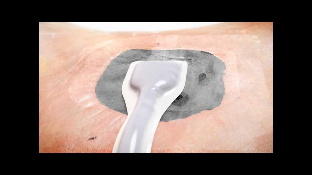 Renasys Foam With Soft Port Youtube