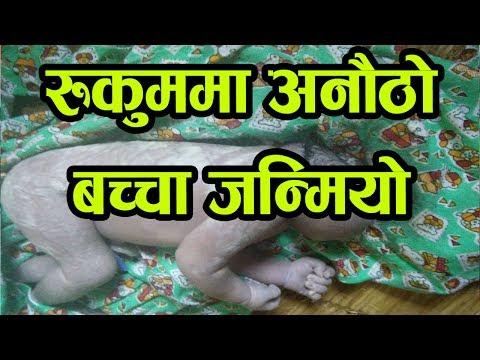 रुकुममा यस्तो बच्चा जन्मियो जसको टाउँकै छैन ! Rukum NEWS