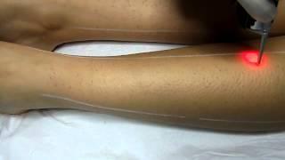 Alexandrite lazer epilasyon uygulama.MP4