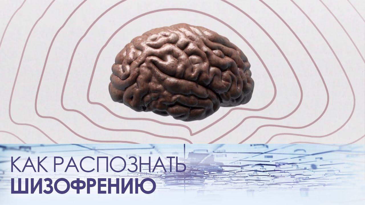 Смотреть Шизофрения - первые признаки видео