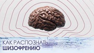шИЗОФРЕНИЯ. Как распознать шизофрению? Можно ли ее вылечить? Мацпен