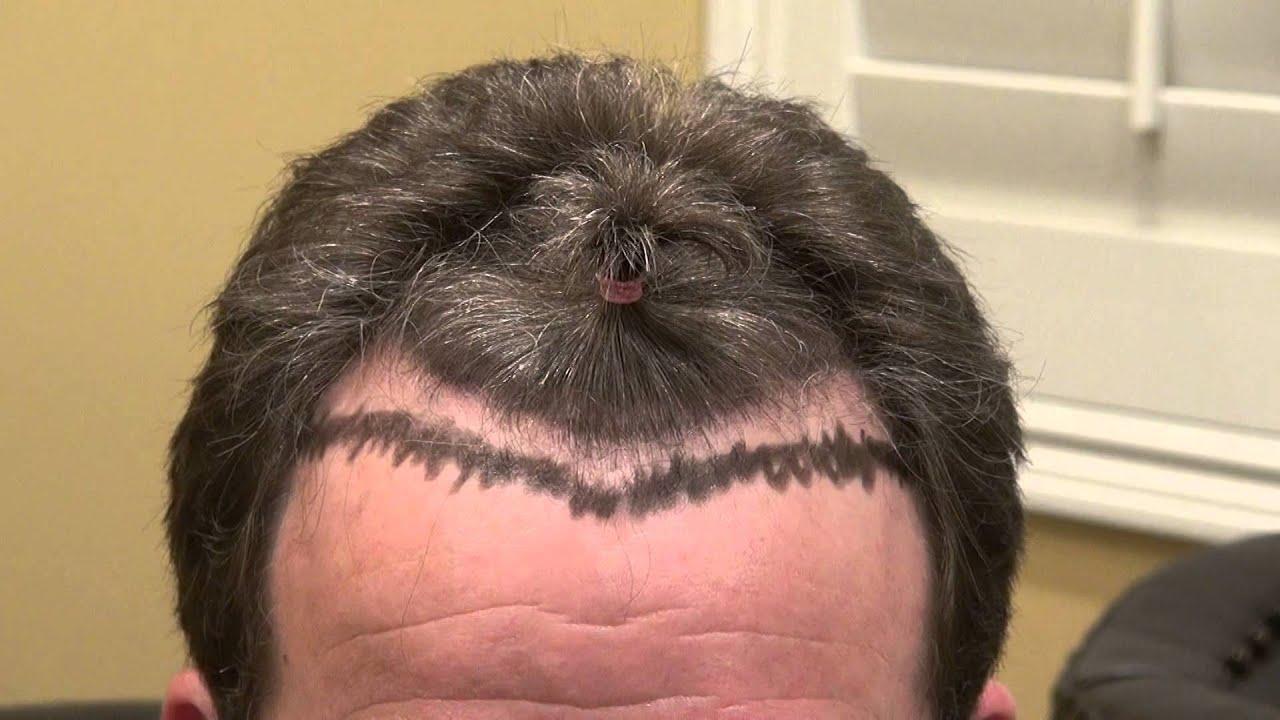 man hair loss treatment receding