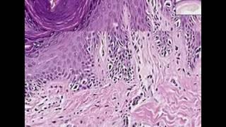 Histopathology Skin--Melanoma in situ