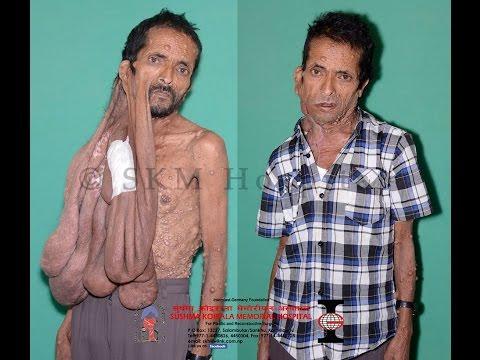 Krishna Prasad Bhattarai ( Neurofibromatosis): Sushma Koirala Memorial Hospital