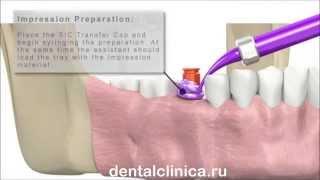 European Clinic of Aesthetic Dentistry в Москве Санкт-Петербурге протезирование лечение зубов(, 2014-03-25T19:37:15.000Z)