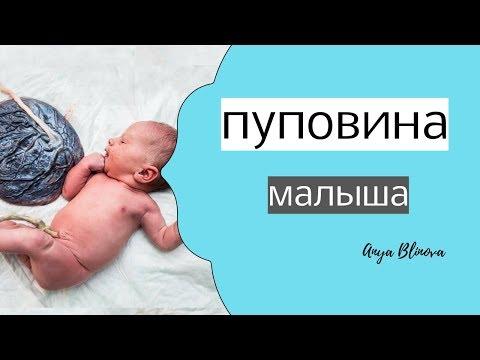 Как выглядит пуповина у новорожденного