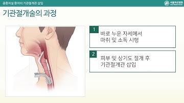 중환자 기관절개관 (Tracheostomy in ICU)