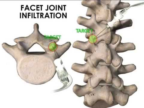Ultrasound Guided Facet Joint And Medial Branch Infiltration Youtube