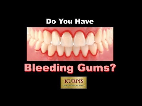 Bleeding Gum, What You Should Know!!!