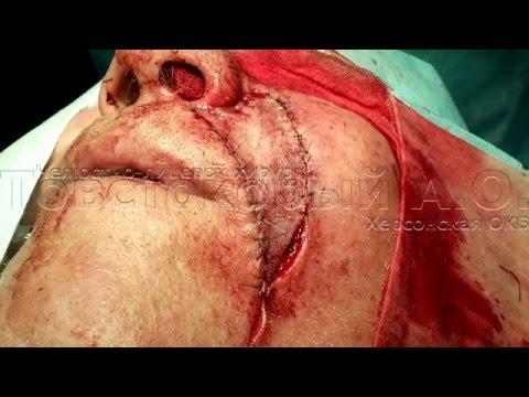 Базалиома (базальноклеточный рак кожи) › Болезни