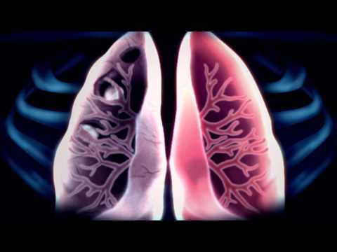 Tuberculosis - X-ray
