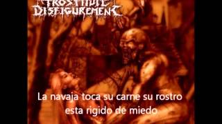 Prostitute Disfigurement-She