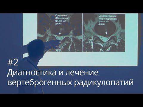 Диагностика и лечение вертеброгенных радикулопатий (часть 2)