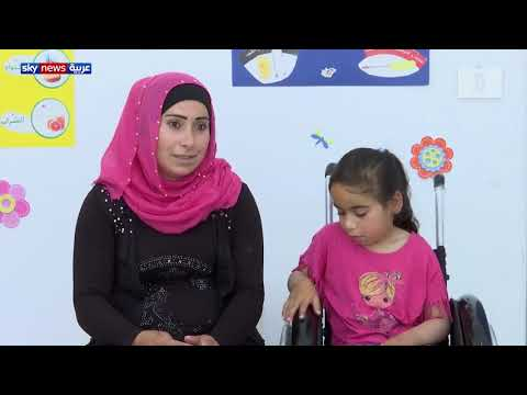 الطفلة فاطمة تحتاج لعملية جراحية لمعالجة تشوهات عظام الساقين  - نشر قبل 4 ساعة