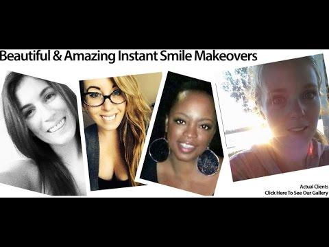 press-on-dental-veneers-online---4-real-client-reviews